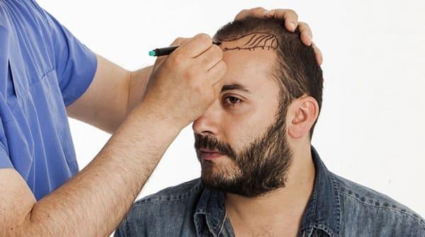 جلسه مشاوره کاشت موی طبیعی