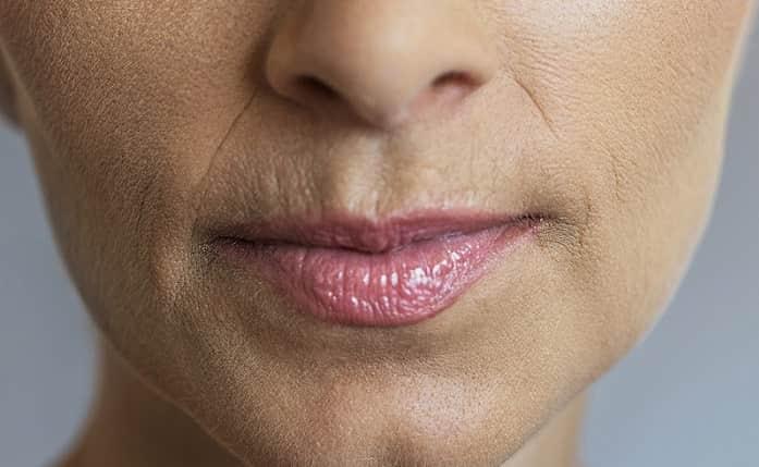 روشهای رفع خط خنده با و بدون جراحی