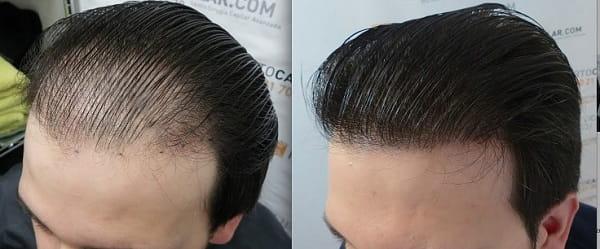 ماندگاری کاشت طبیعی موی سر