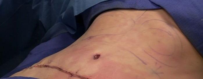 انواع جراحی زیبایی شکم
