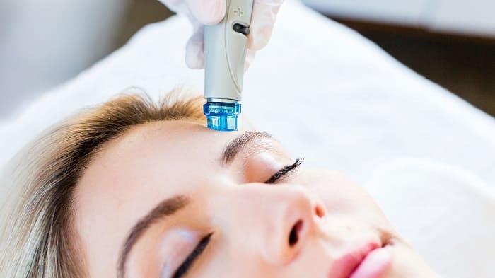 لایهبرداری لیزری و نور درمانی پوست برای درمان جای جوش و آکنه