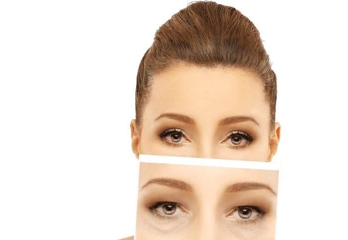 هدف از انجام جراحی پلک چیست؟
