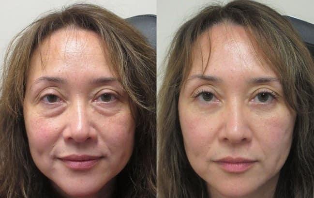 کاهش خطر بروز عوارض جانبی جراحی پلک