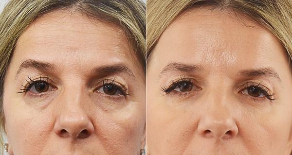 ماندگاری تزریق در ناحیه زیر چشم چقدر است؟