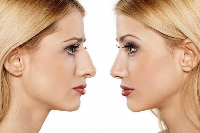 رینوپلاستی یا جراحی زیبایی بینی